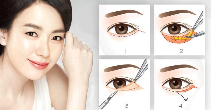 Bóc mỡ mí mắt chữa sụp mí mắt có an toàn, có để lại sẹo không 2