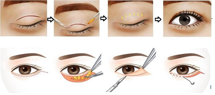 Bóc mỡ mí mắt chữa sụp mí mắt có an toàn, có để lại sẹo không 1