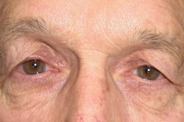 Mách nhỏ đến chị em cách chữa mí mắt bị sụp cấp tốc sau 2 tuần 2